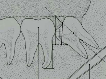 segundo_tercer_molar_impactado/odontoseccion_exeresis