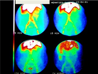 angiodisplasia_colon_estenosis_aortica/gammagrafia_hemorragia_digestiva_angiodisplasia
