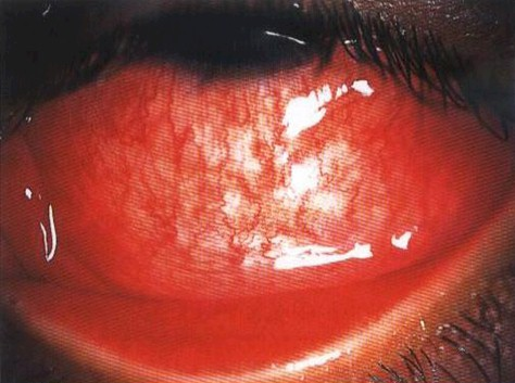 conjuntivitis_infecciosas/conjuntivitis_infecciosa_viral_virus