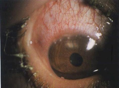conjuntivitis_infecciosas/infiltrados_marginales_cornea_queratoconjuntivitis_chlamydias