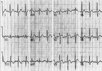 TEP_tromboembolismo_pulmonar/ecg_electrocardiograma_s1q3t3