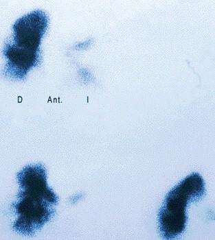 TEP_tromboembolismo_pulmonar/gammagrafia_pulmonar