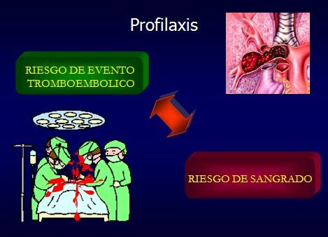 TEP_tromboembolismo_pulmonar/profilaxis_prevencion_embolia