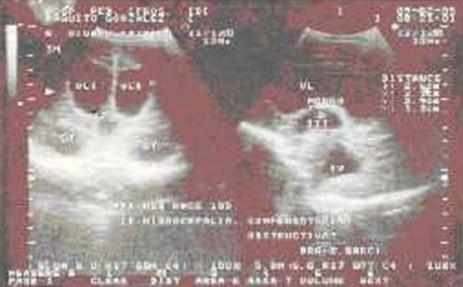 diagnostico_precoz_hidrocefalia/ecografia_cerebral