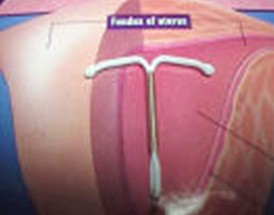 dispositivo_intrauterino_abdominal/DIU_T_de_cobre
