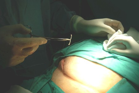 dispositivo_intrauterino_abdominal/DIU_extraccion_quirugica_cirugia