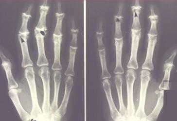 pautas_medicina_interna/osteoartrosis_radiografia_manos_signo_gaviota