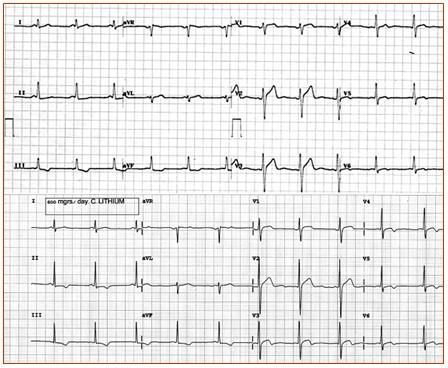teoria_litio_carbonato/ECG_electrocardiograma_intervalo