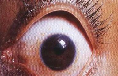 malformaciones_congenitas_cornea/microcornea