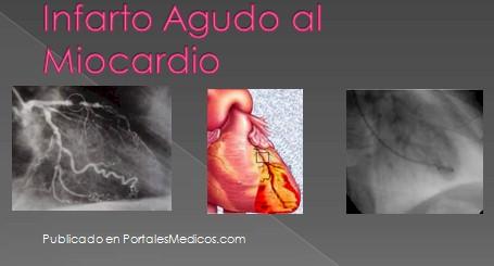 infarto_agudo_miocardio/IAM_IMA_imagenes