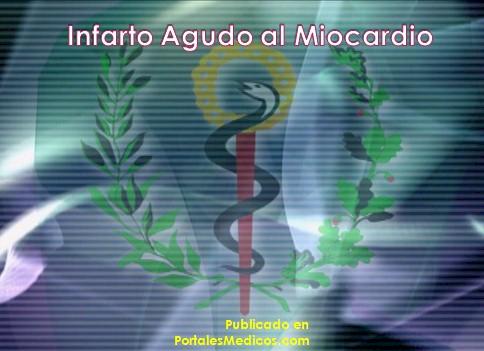 infarto_agudo_miocardio/IAM_revision