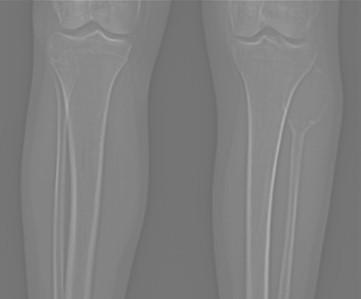 tumor_oseo_celulas_gigantes/TAC_anteroposterior_tumoracion
