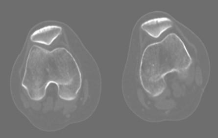 tumor_oseo_celulas_gigantes/perone_TAC_tumoracion
