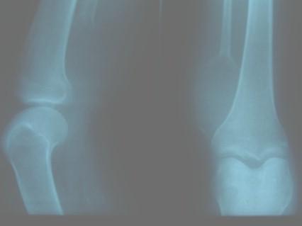 tumor_oseo_celulas_gigantes/rx_tumoracion_perone
