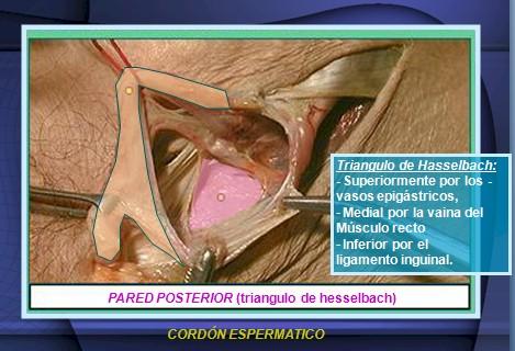 hernias_inguinales/cordon_espermatico