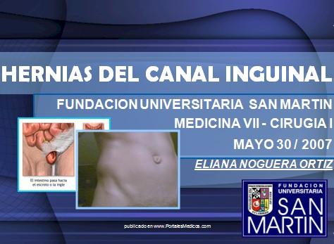hernias_inguinales/hernia_canal_inguinal