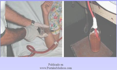 patologia_pleural/lavado_pleural_liquido