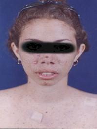 xeroderma_pigmentoso_Kaposi/carcinoma_basocelular_espinocelular