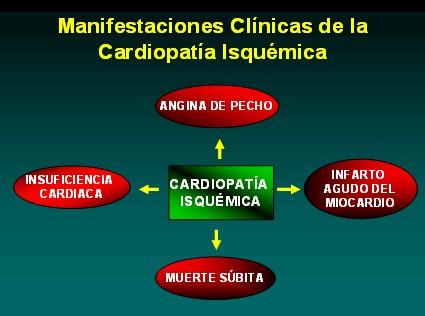 farmacologia_terapeutica_antianginosa/clinica_cardiopatia_isquemica