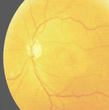 toxicidad_ocular_tamoxifeno/alteraciones_retinianas