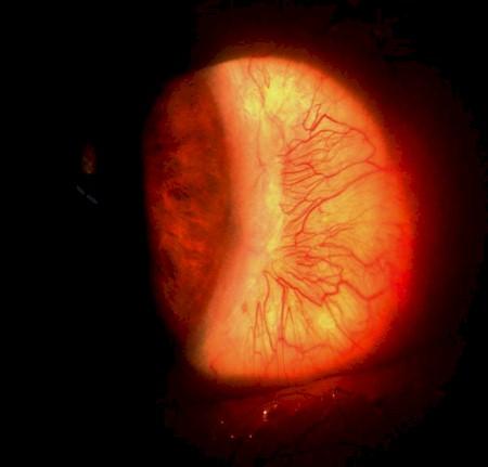 escleritis_anterior_necrotizante/localizacion_exeresis_pterigium