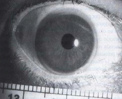 malformaciones_congenitas_cornea/megalocornea