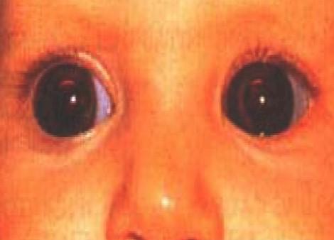 malformaciones_congenitas_cornea/megalocornea_corneal