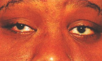 malformaciones_congenitas_cornea/microcornea_bilateral