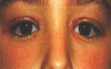 manifestaciones_oftalmologicas_enfermedades/afectacion_palpebral_psoriasis