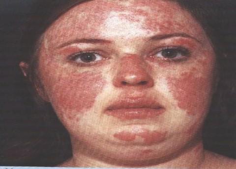 manifestaciones_oftalmologicas_enfermedades/lupus_eritematoso_sistemico