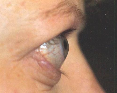 manifestaciones_oftalmologicas_enfermedades/miopatia_tiroidea_restrictiva
