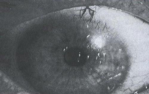 manifestaciones_oftalmologicas_enfermedades/oftalmopatia_artritis_reumatoide