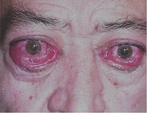 manifestaciones_oftalmologicas_enfermedades/oftalmopatia_tiroidea_restrictiva