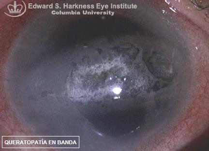 manifestaciones_oftalmologicas_enfermedades/queratopatia_en_banda
