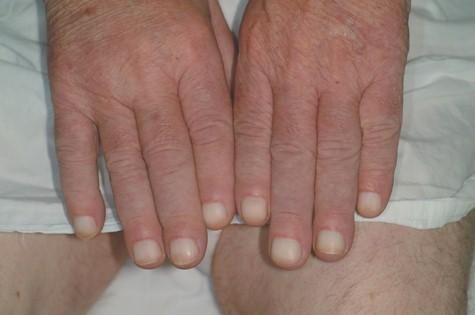 osteoatropatia_hipertrofica_carcinoma/acropaquia_leuconiquia_acropaquias