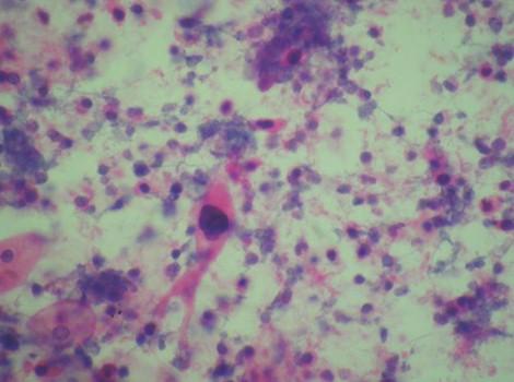 osteoatropatia_hipertrofica_carcinoma/citologia_carcinoma_epidermoide