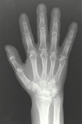 osteoatropatia_hipertrofica_carcinoma/reaccion_periostica_diafisis