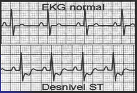 infarto_agudo_miocardio/ECG_ST_IAM