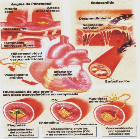 De la osteocondrosis y spondiloartroza sheynogo del departamento de la columna vertebral
