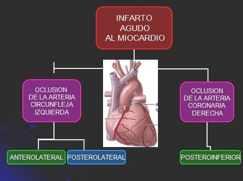 Infarto agudo al miocardio. Tratamiento trombolitico - Revista ...