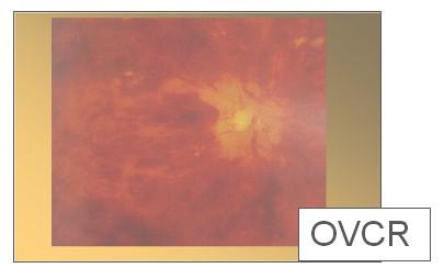 lesiones_vasculares_retina/oclusion_vena_central_retina