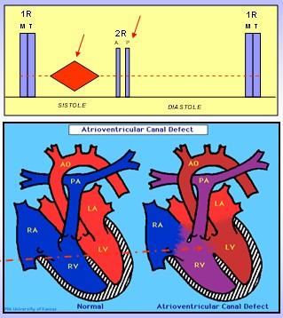 cardiopatias_congenitas/CIA_auscultacion_bloqueo