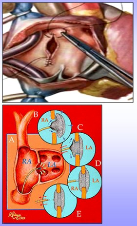 cardiopatias_congenitas/CIA_tratamiento_cirugia