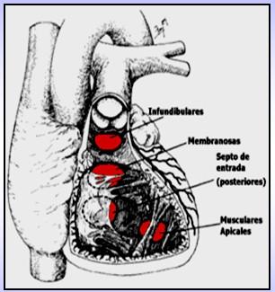 cardiopatias_congenitas/anatomia_comunicacion_interventricular