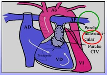 cardiopatias_congenitas/cirugia_tetralogia_Fallot