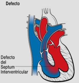 cardiopatias_congenitas/fisiopatologia_comunicacion_interventricular_CIV.