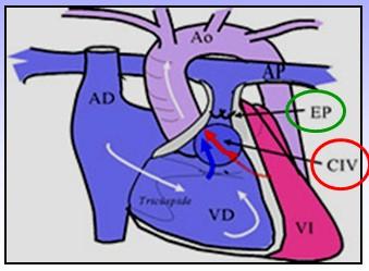 cardiopatias_congenitas/fisiopatologia_tetralogia_Fallot