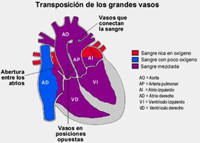 cardiopatias_congenitas/fisiopatologia_transposicion_grandes_arterias