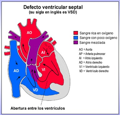 cardiopatias_congenitas/oximetria_flujo_oxigenacion