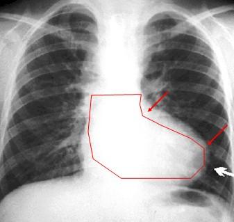 cardiopatias_congenitas/radiografia_tetralogia_Fallot.